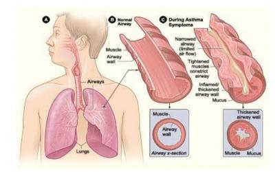 The Asthma Long Term Diseases